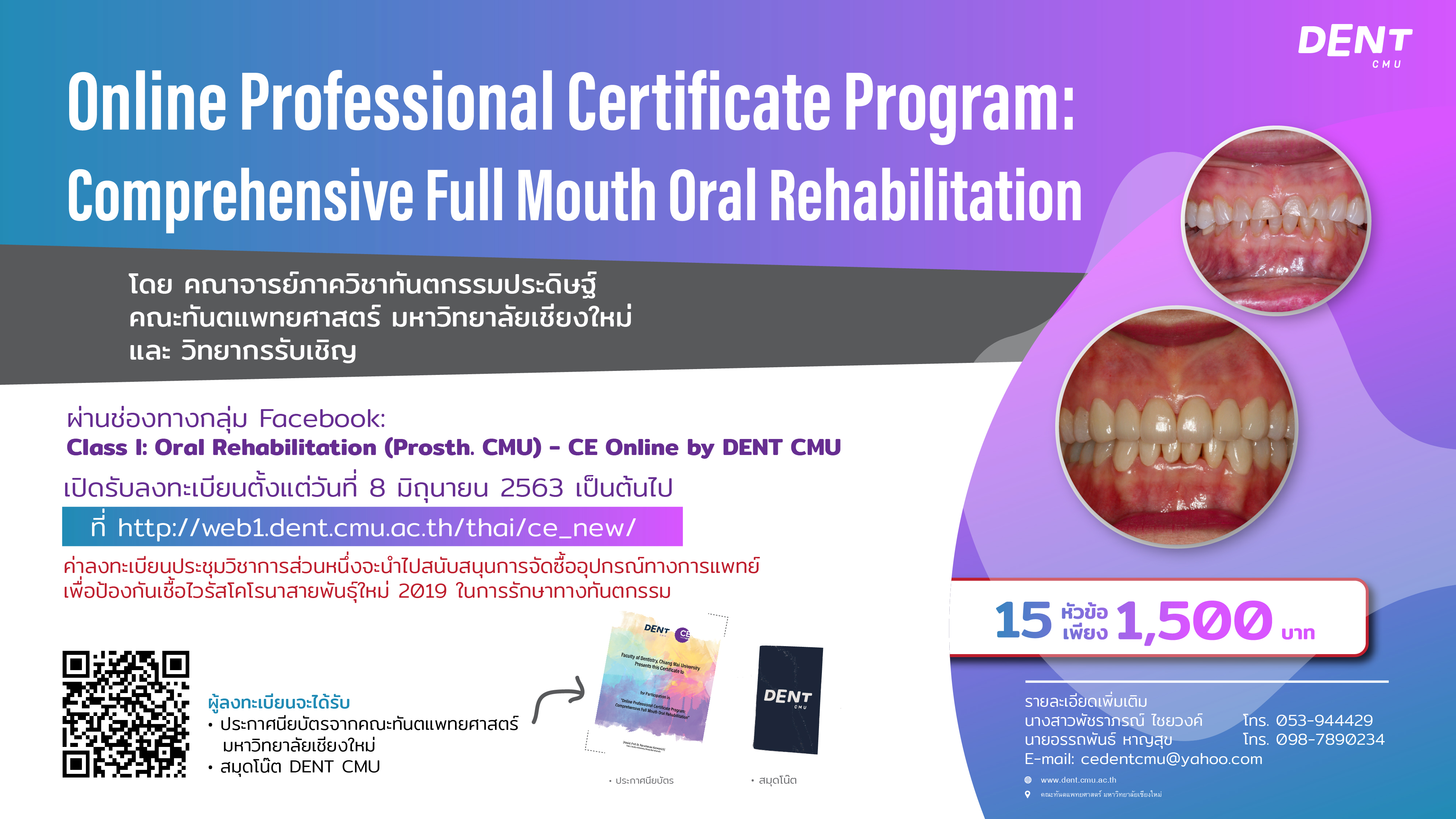 Online Professional Certificate Program: Comprehensive Full Mouth Oral Rehabilitation