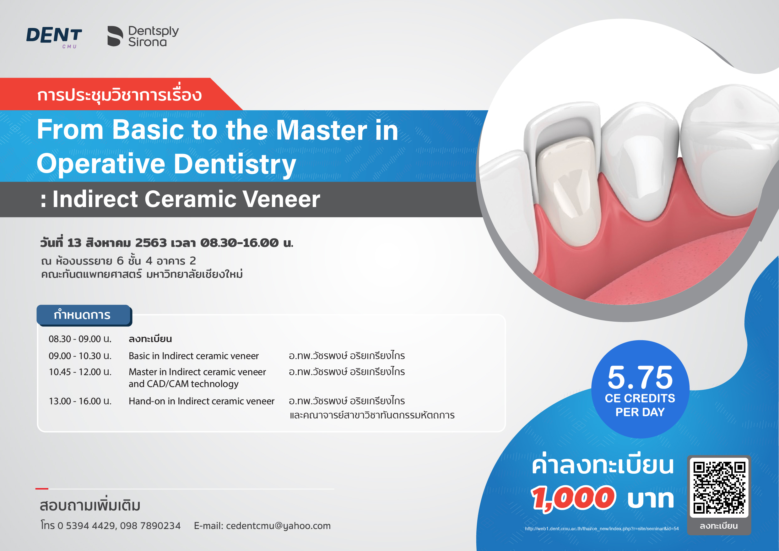 From Basic to the Master in Operative Dentistry: Indirect Ceramic Veneer (13 สิงหาคม 2563)